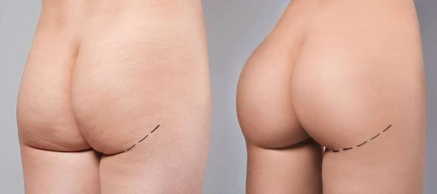 What you need to know about Brazilian Butt Lift surgical procedure